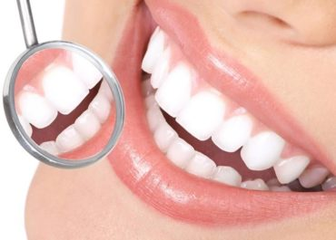 отбеливание зубов владикавказ цена