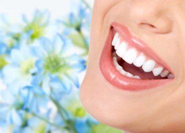 Отбеливание зубов (2 челюсти) – 1500 грн.