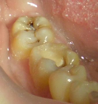 отбеливание зубов ультразвуком отзывы