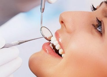 Акция – cкидка 25% на комплексную чистку зубов