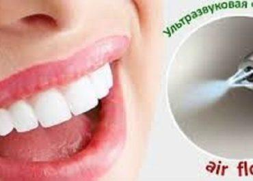 Акция: Комплексная чистка зубов - 500 гривень