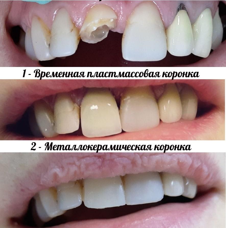 galadgyi_porfolio2do_posle