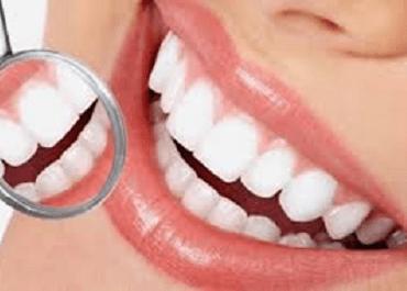 Акция - Комплекс «Комбинированная чистка зубов + отбеливание зубов» - 2500,00 грн.